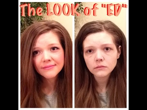 The LOOK of an EATING DISORDER (my top 8 list)