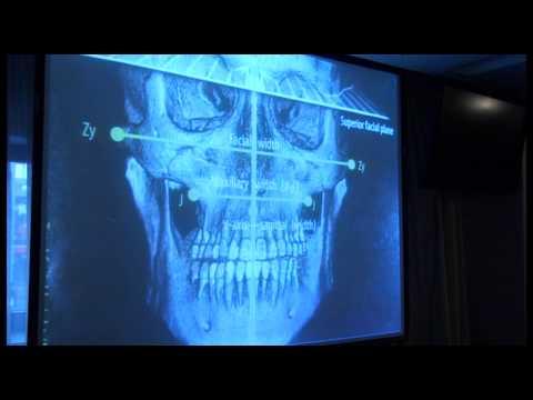 3D-цефалометрия: новый уровень диагностики в ортодонтии