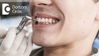 What causes bleeding gums and how to manage it? - Dr. Aniruddha KB