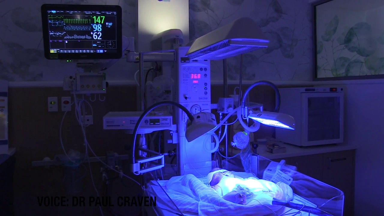 Newborn Babies Jaundice Treatment Phototherapy Treatment In Nicu For Jaundice