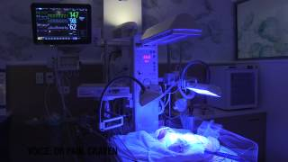 Phototherapy treatment in NICU for jaundice