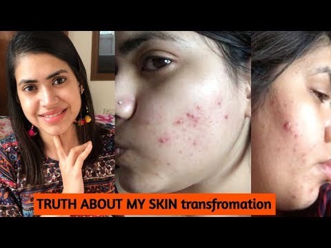 How I cleared my SKIN from ACNE & DARK SPOTS