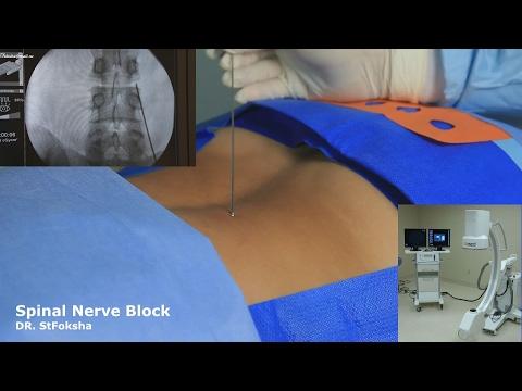 Протрузия диска L5-S1- симптомы, лечение, прогноз