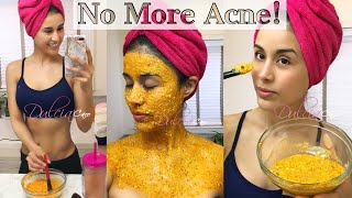 Papaya Face Mask Clear Acne Scars, Pigmentation and Oily skin
