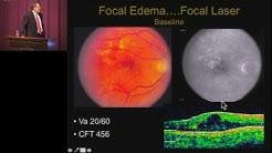 hqdefault - International Clinical Diabetic Macular Edema Disease Severity Scale