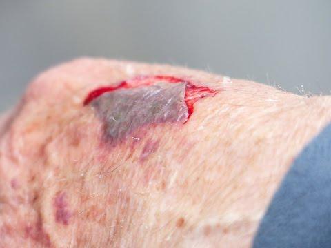 MRSA Wound Treatment - YouTube