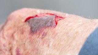 MRSA Wound Treatment