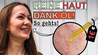 Das neue Gesichtsöl für unreine und fettige Haut! Einfach & günstig!