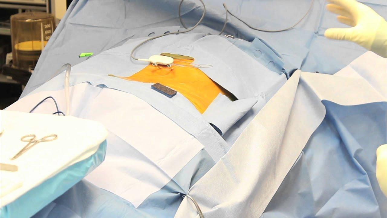 operații vizionează varicoză)