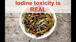 Iodine toxicity is real