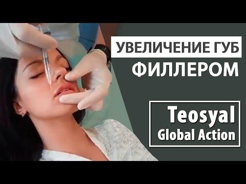 Увеличение губ гиалуроновой кислотой Teosyal Global Action
