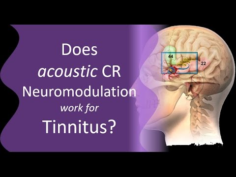 is-cr-neuromodulation-effective-for-tinnitus?
