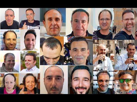 Más de 100 sonrisas fotografiadas del antes y después del trasplante capilar en cliniFUE.es
