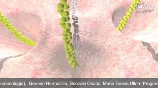 Repeat youtube video Infección Gastrointestinal por Shigella