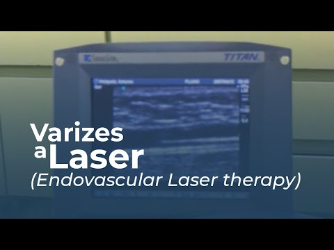 videoclipuri cu laser varicoză