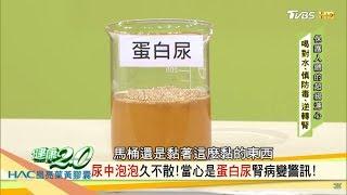 尿中泡泡久不散?當心是「蛋白尿」腎病變警訊!健康2.0