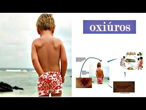 ✅ Saiba Como Evitar E Tratar A Oxiurose, Oxiúros Com Dicas E Remédios Caseiros!