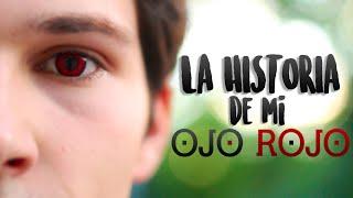 La historia de mi ojo rojo