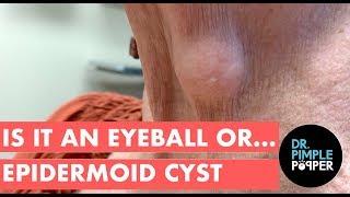 Is It an Eyeball...or Epidermoid Cyst?