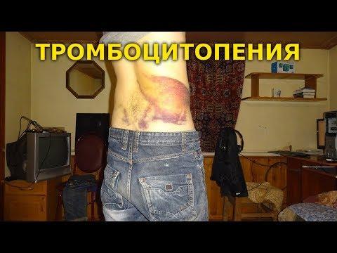 Тромбоцитопения: последствия падения и ушиба