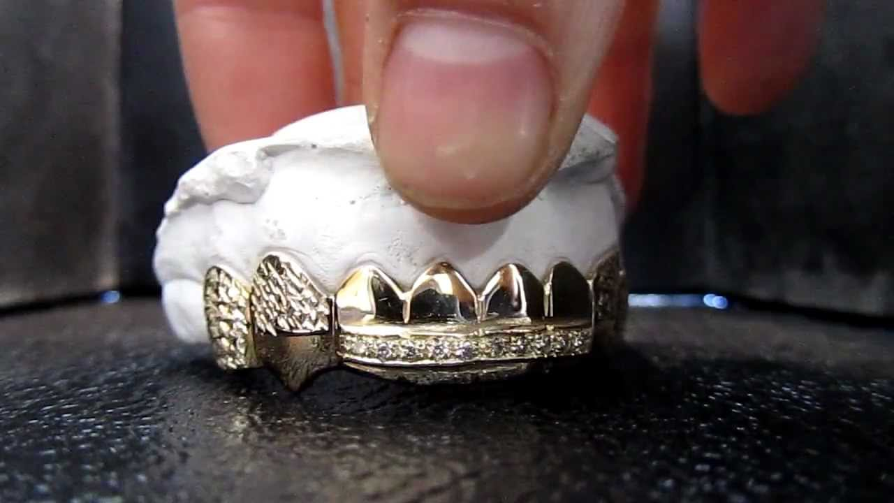 8 Gold Teeth With A Bar On The 4 Front Teeth And Princess