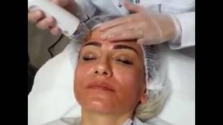 Uzm.Dr.Hatice Erdem SECRET Altın İğne uygulaması-www.kocyigitmedikal.com.tr