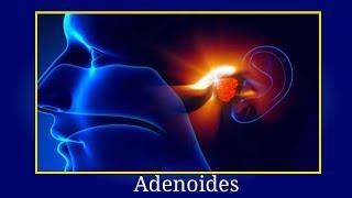 Adenoides Que Es? - Los Adenoides Como Detectarlas Consecuencias y Tratamiento