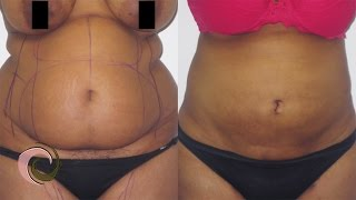 Mega Liposuction for Larger Patients // PATIENT BEFORE & AFTER