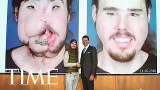 A Face Transplant Gave This 26-Year-Old A 'Second Chance At Life' | TIME