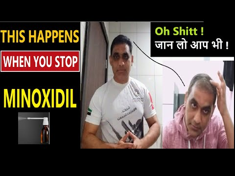 what-happens-to-your-hair-when-you-stop-using-minoxidil-in-hindi- 