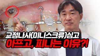 미니스크류(교정나사) 심고 아프고, 피나는 이유?!  …