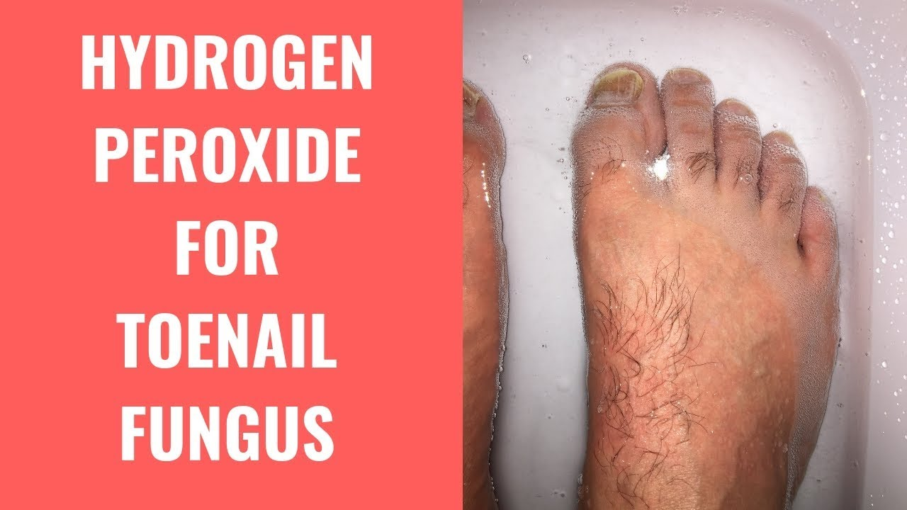 Hydrogen Peroxide Effective For Treating Toenail Fungus - YouTube