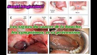 Les signes du cancer de la bouche, les symptômes, et sa prévention