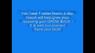 Receding Gums Grow Back Naturally, How To Grow Back Receding Gums Naturally