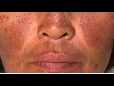 Melasma Receita Caseira Para Acabar Com Manchas No Rosto Como