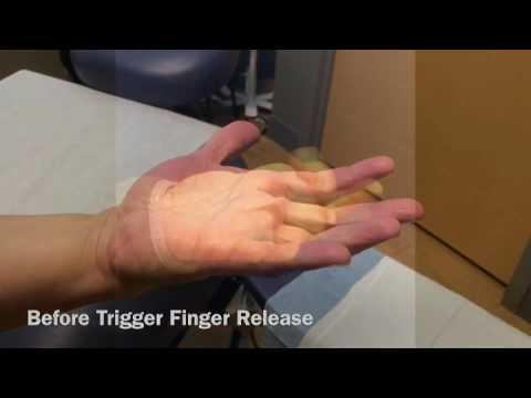 Before and After Trigger Finger Release