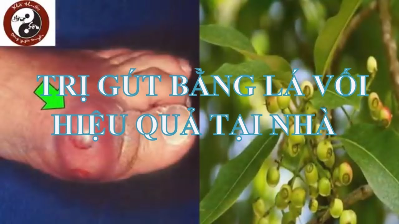 Chữa bệnh gút (gout) – Cách chữa bệnh gút bằng lá vối tươi