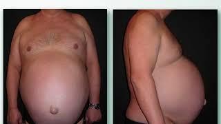 Pancia: oltre al grasso sottocutaneo esiste il grasso viscerale, ecco la differenza thumbnail