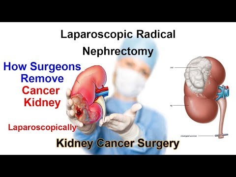 Cancer Kidney Removal Surgery | Laparoscopic Right Radical Nephrectomy by Dr Anshuman Agarwal
