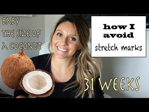 HOW I AVOID STRETCH MARKS WHILE PREGNANT ( 31 week vlog)