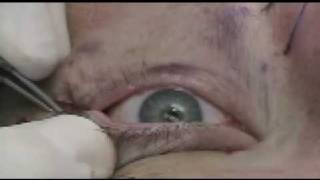 Lower Eyelid Laser Surgery - Blepharoplasty