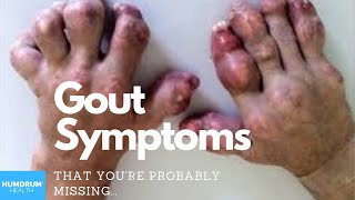Gout Symptoms & Signs (that you may be missing)