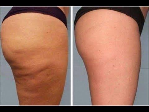 Comment perdre la peau d orange masseur anti cellulite - Pelure d orange pour parfumer ...