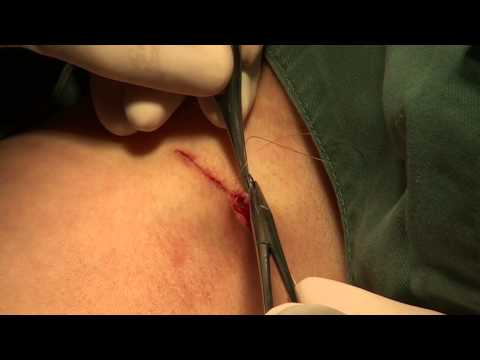 高須クリニック 他院豊胸手術後のワキの傷跡修正手術 右側手術映像 わきがの傷跡にも似てます