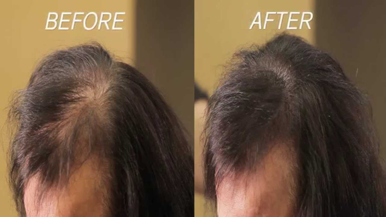 eclipse instant hair filler: instant results to thinning hair