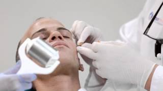 Dr. Alan Durkin Demonstrates Radiesse Injection on Male