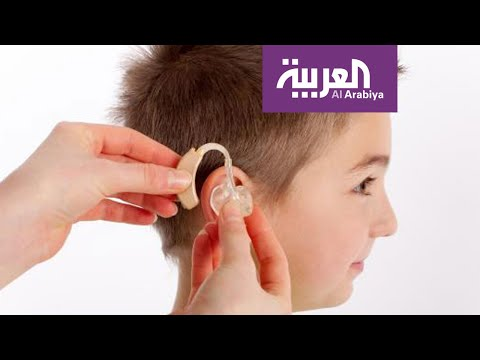 صباح العربية | السماعات العظمية الالكترونية أمل لفاقدي السمع  - نشر قبل 2 ساعة