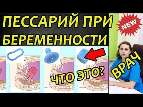 Пессарий при беременности, что это такое. Отзыв врача. Когда ставят и снимают на шейку матки?
