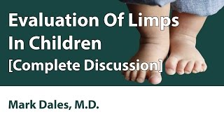 Evaluation Of Limps In Children [Complete Discussion]