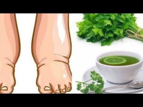 Dieser kraftvolle hausgemachte Tee wird geschwollene Beine in wenigen Tagen heilen